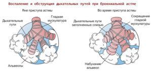 Галотерапия в лечении бронхиальной астмы